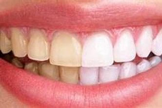Branqueamento Dentário em Ambulatório (casa)