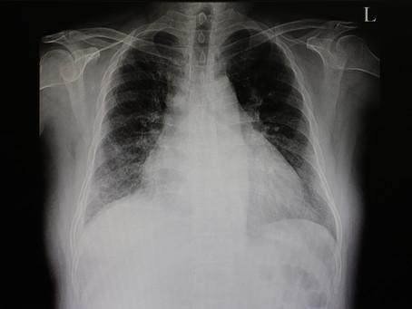 Claiming Congestive Heart Failure as a Long-Term Disability