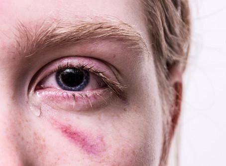 How Macular Edema Causes Disability