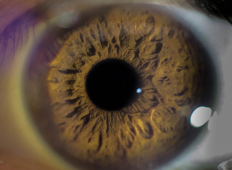 Proving Macular Degeneration Disability Claims