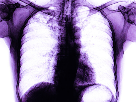 What is Chronic Lung Disease?