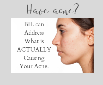 Have acne? BIE can address what is ACTUALLY causing your acne.