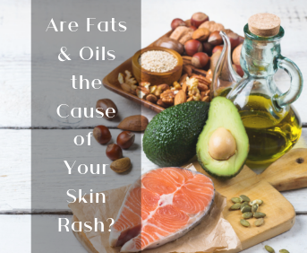 Are Fats & Oils the Cause of Your Skin Rash?