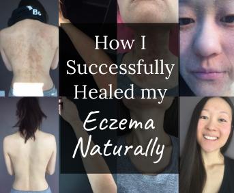 How I Successfully Healed my Eczema Naturally