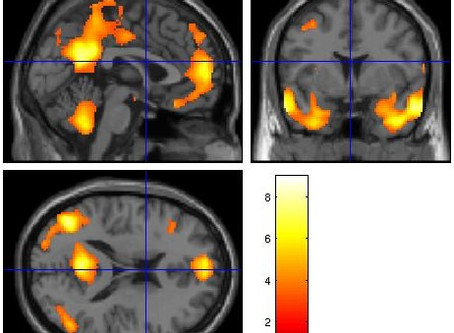 Brain imaging research in Fragile X premutation carriers: Where we are and where we're going