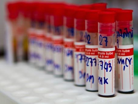 Aumentar o Número de Exames Pode Ser Prejudicial ao Laboratório