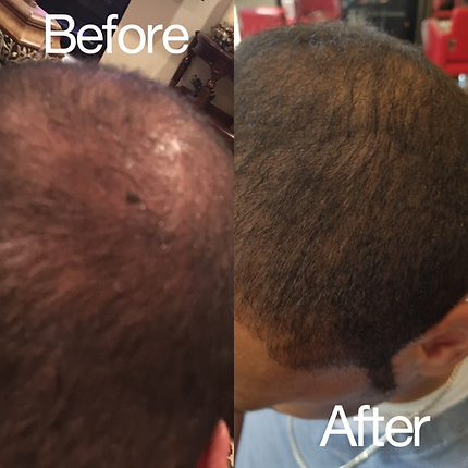 HCS_Hair Loss