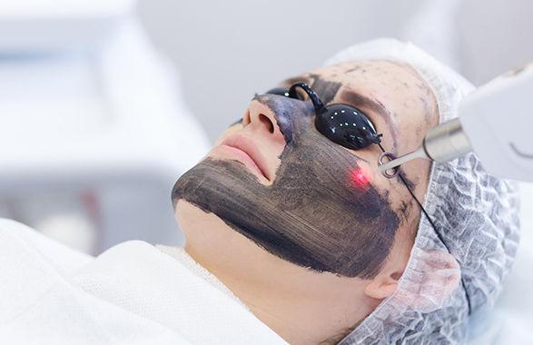 Carbon Peel Laser