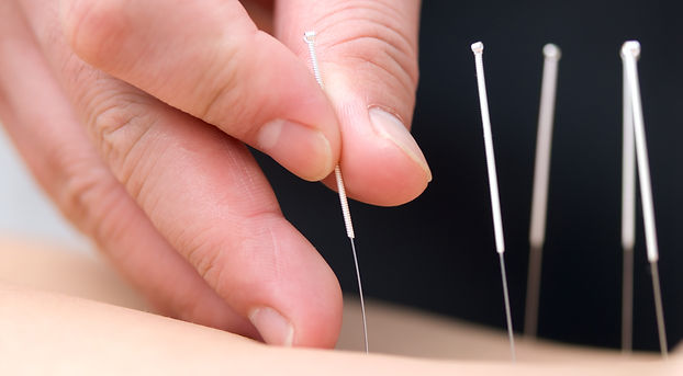 Acupuncturist inserting needles
