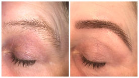 Hi Brow Before & After