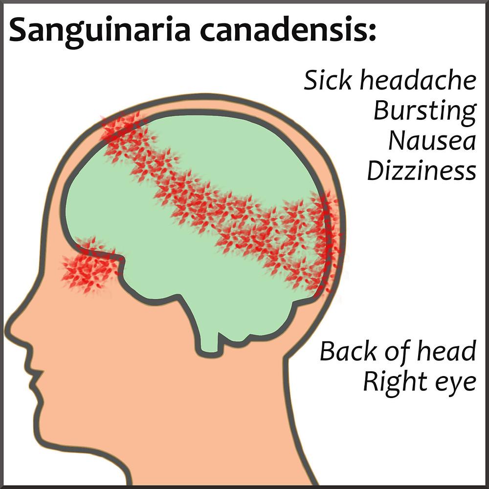 Homeopathy for Headaches | Musings of a Modern Hippie