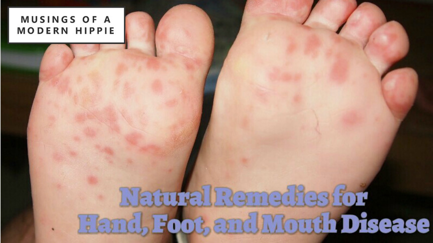 Natural Support for Hand, Foot, and Mouth Disease