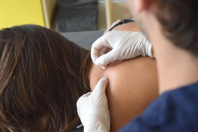 Fisioterapia y Fibromialgia.