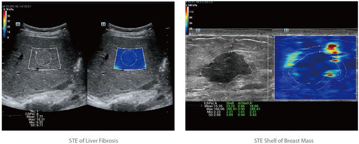 STE of liver fibrosis.jpg