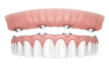 All-on four in resina Dental Smile
