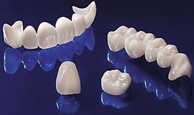 Corona in zirconia Dental Smile
