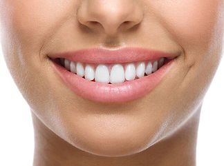 Sonhar-com-dentes-brancos.jpg