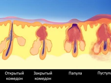 Эволюция акне-элементов