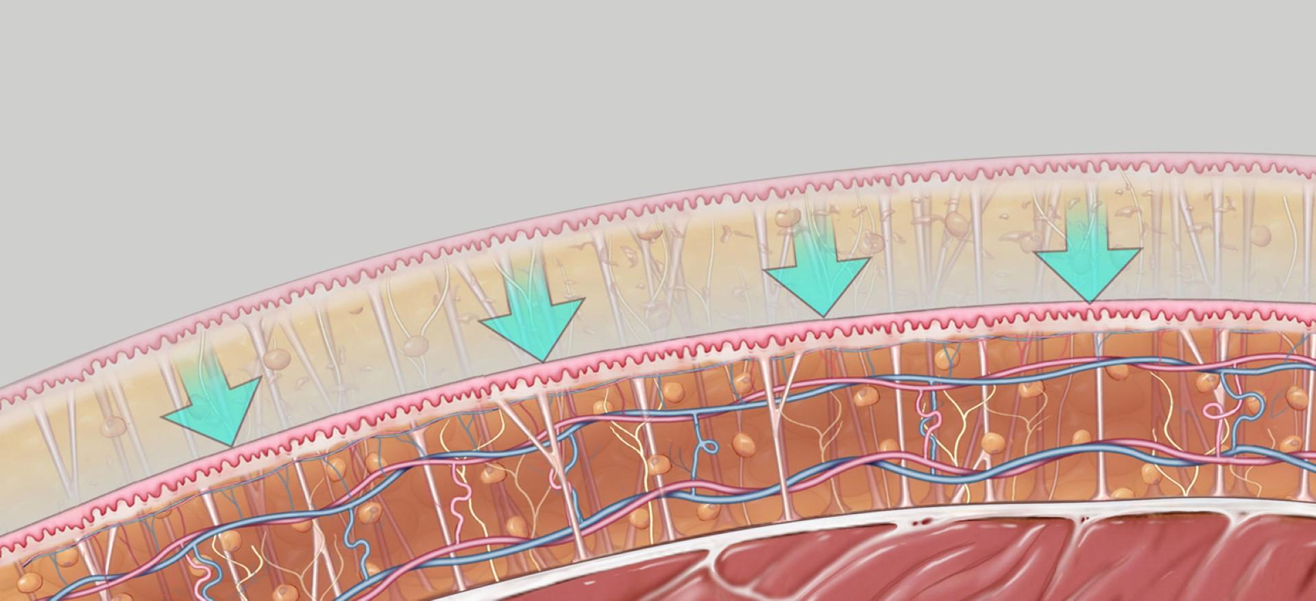 CI 5 - Skin Retraction (Large)