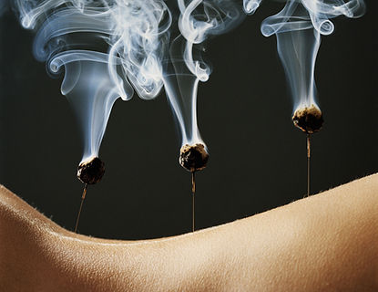 Moxabustion+++Acupuncture+-+do+not+have+rights+to+image+crop.jpg