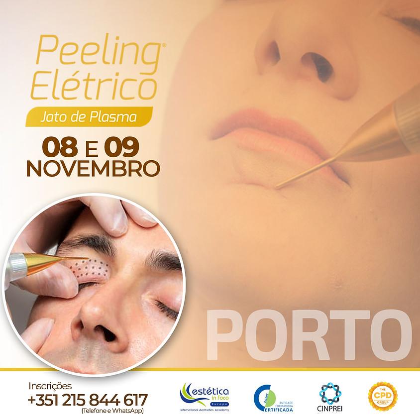 Peeling Elétrico (Porto)