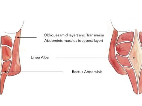 Diastasis Recti...The Gap Isn't The Problem