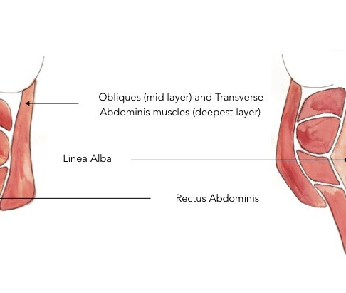 Diastasis Recti...The Gap Isn't The Problem