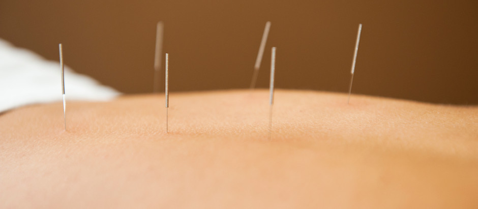 Dry Needling + Pelvic Floor Dysfunction