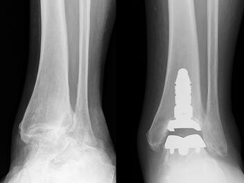 Prótese de tornozelo