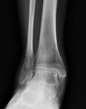 Artrose de Tornozelo