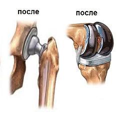 Эндопротезирование - замена коленного и тазобедренного суставов