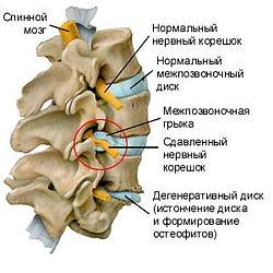 Спинальна хирургия - ламинэктомия