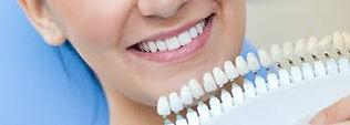 teeth_guide.jpg