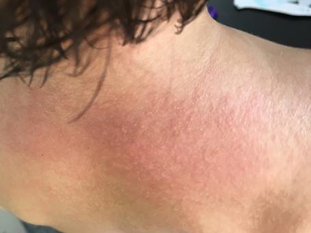 インドのホームレメディ。汗疹、皮膚のトラブルに。