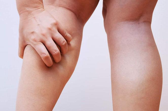 Leg Pain.jpg