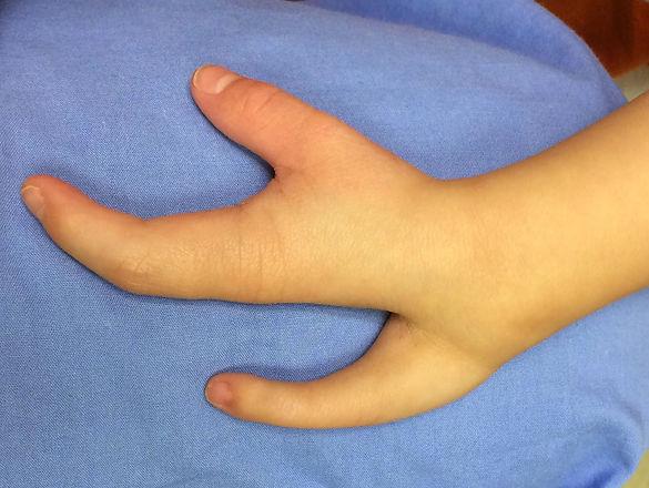 CONGENITAL HAND DEFORMITY