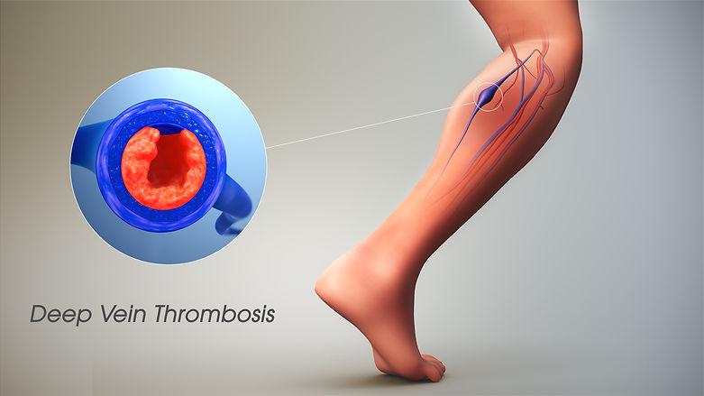 Deep Vein Thrombosis.jpg