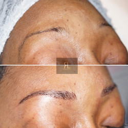 Cosmetic eyebrow tattoo Hatfield