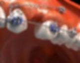 curso mini implante ortodontia rj