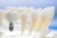 curso implantodontia niteroi rj