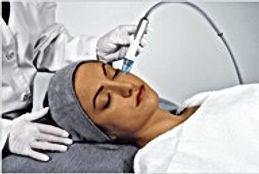アクアプラスのクリスタルピーリング。エッセンシャルピールは、サファイア、ルビーの仲間、アルミナパウダーを吹き付け角質を除去。特殊ヘッド吸引法により血液、リンパの循環を促進。