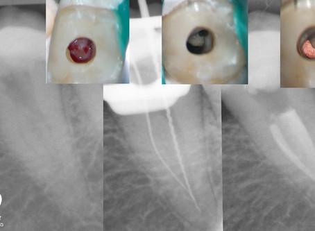 טיפול שורש בשן עם מורפולוגיה חריגה - C shaped