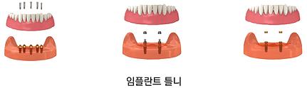 implant_method04.png