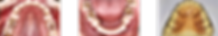 tooth_index_img05.png
