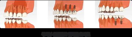 implant_method02.png