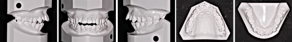 tooth_index_img02.png