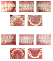 tooth_index_img08.png