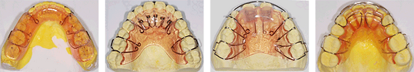 tooth_index_img07.png