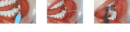 implant_method05.png