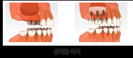 implant_method03.png